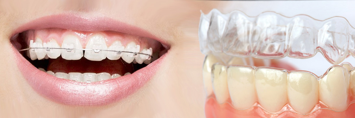 Rockville Which is Better Invisalign or Braces